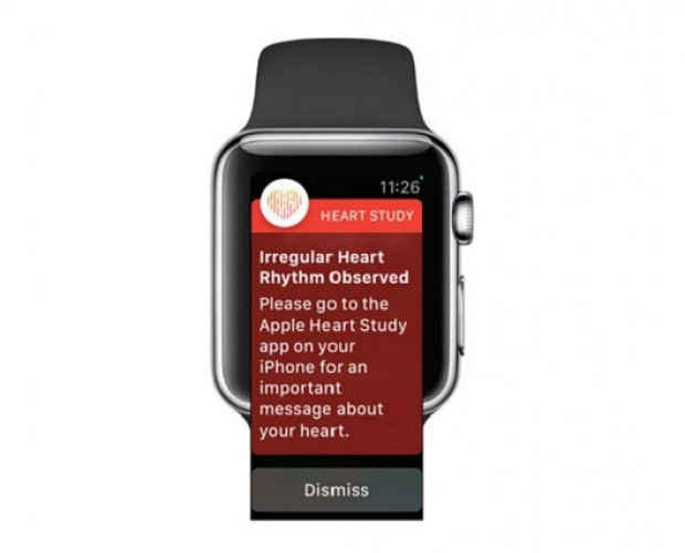Apple Watch Heart Study has over 400,000 participants